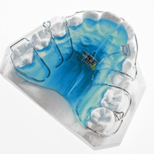 Model of smile with Hawley retainer