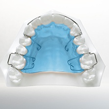 Model of smile with bite plate