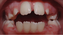 Young girl after orthodontic treatment