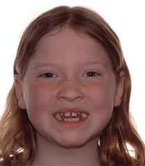 Young girl before orthodontic treatment